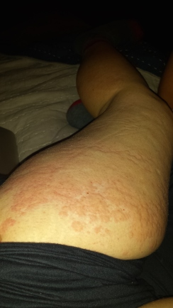 One week I started to intermittently got hives...on all my arms and legs...and bum.