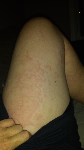 Still not quite sure why I got hives. They came and went throughout each day for a week...whilst we all had colds.